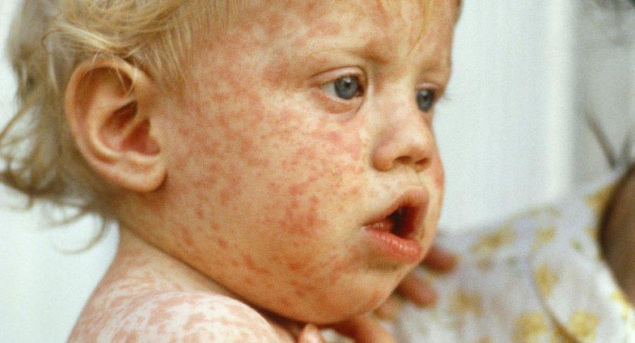 measles_wide.jpg.pagespeed.ce.a3_vlrWYb_.jpg